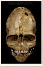 the-andover-skull