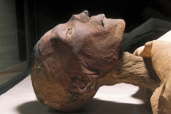 Ramses-smallpox-1300x866.jpg